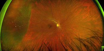 Photo of an ocular emergency: Retinal Detachment with horshoe tear