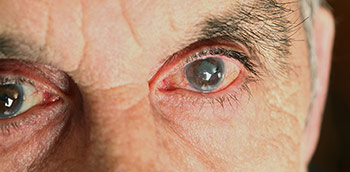 Photo of Eyes with Glaucoma