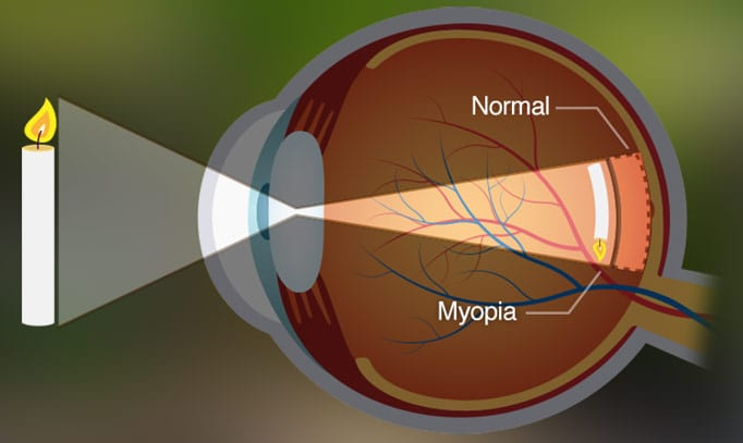 Graphic of structure of an eye depicting visual errors